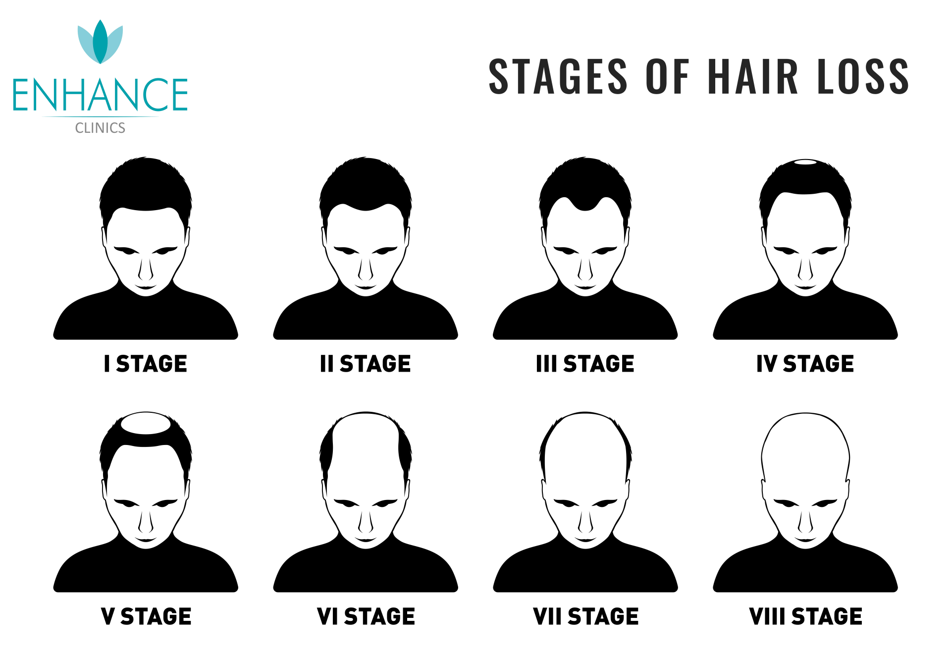 Stages of Hair Transplant